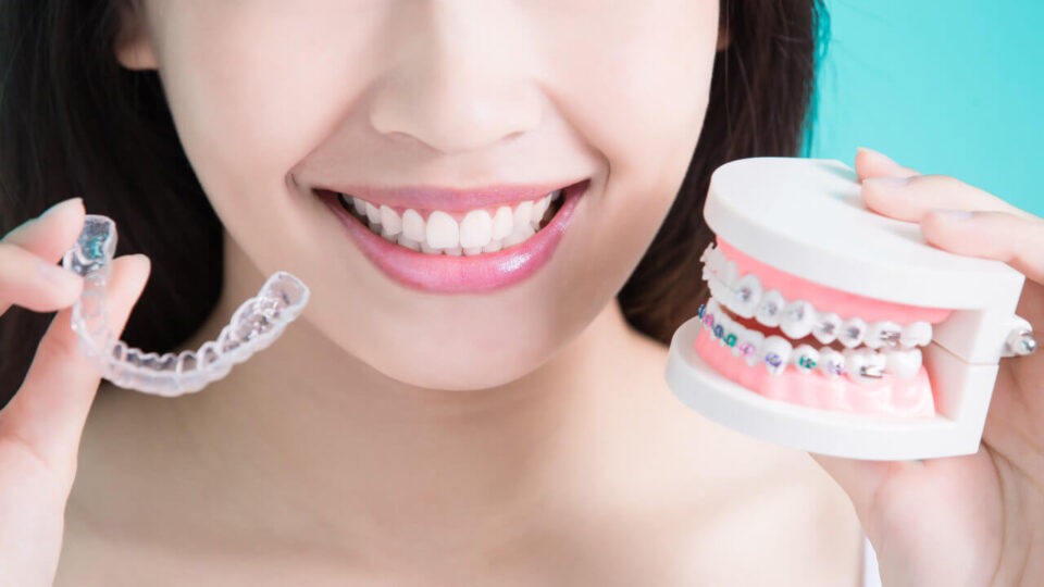 Invasalign in Chic Dental - Answers to the most frequently asked questions - Chic Dental. Preston, Victoria. Melbourne