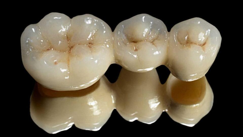 Crown and bridge in Preston, Victoria. Melbourne - Chic Dental