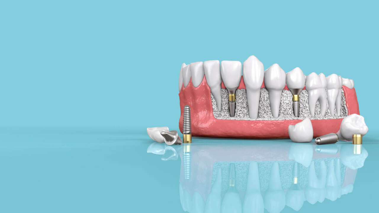 Conventional implants in Preston, Victoria. Melbourne - Chic Dental
