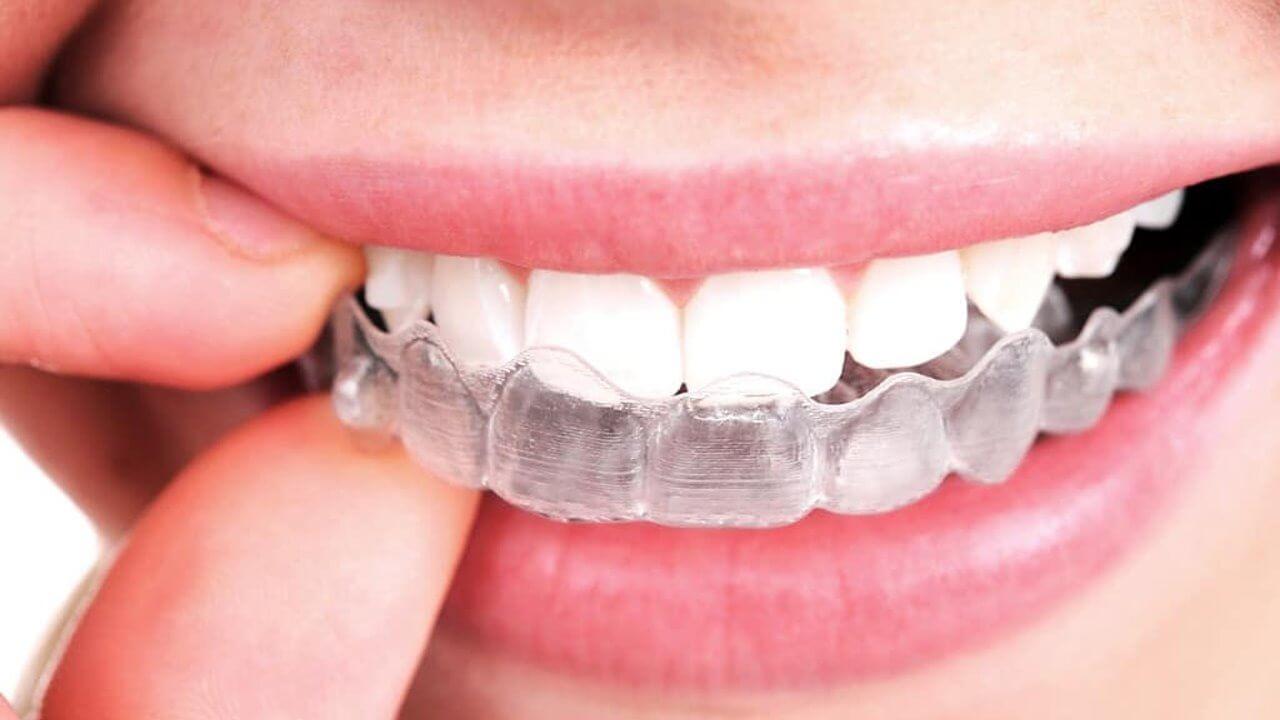 Invisalign no braces in Preston, Victoria. Melbourne - Chic Dental