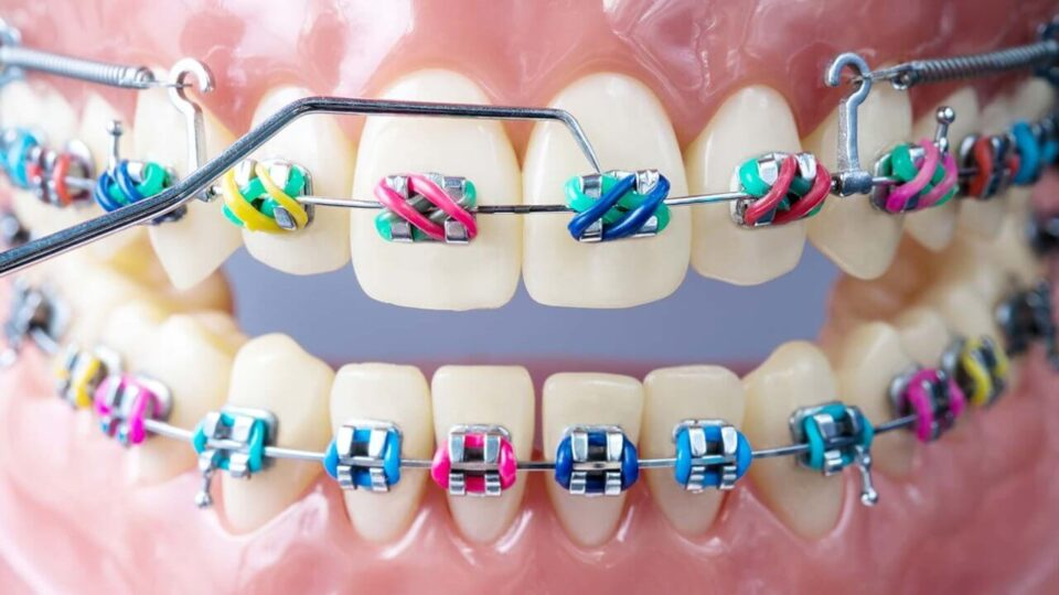 Orthodontics in Preston, Victoria. Melbourne - Chic Dental