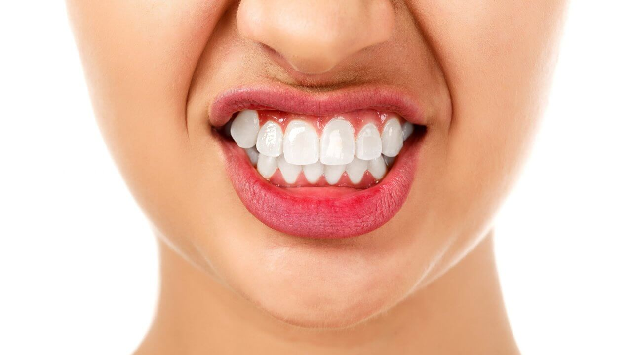 Teeth grinding and jaw problems in Preston, Victoria. Melbourne - Chic Dental