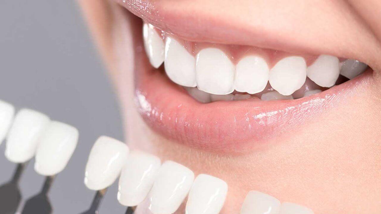 Teeth whitening in Preston, Victoria. Melbourne - Chic Dental