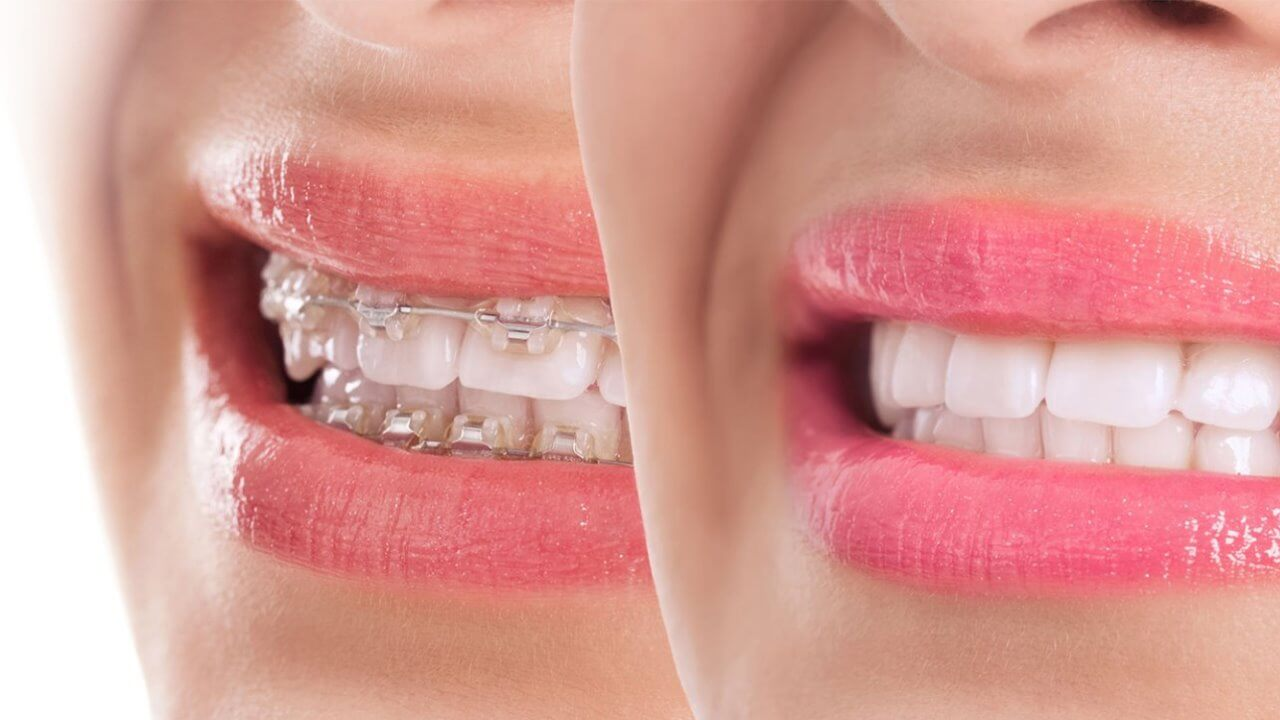 Traditional and clear braces in Preston, Victoria. Melbourne - Chic Dental