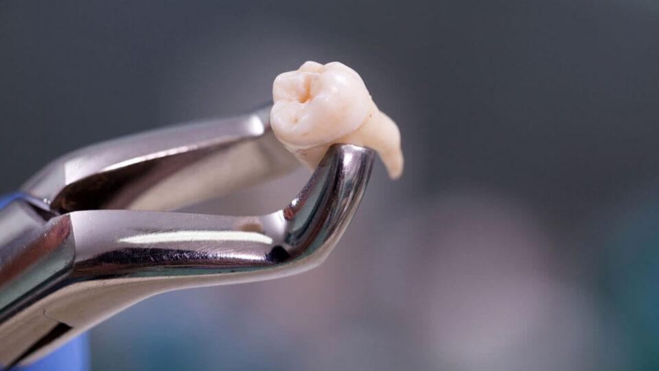 Wisdom teeth removal in Preston, Victoria. Melbourne - Chic Dental