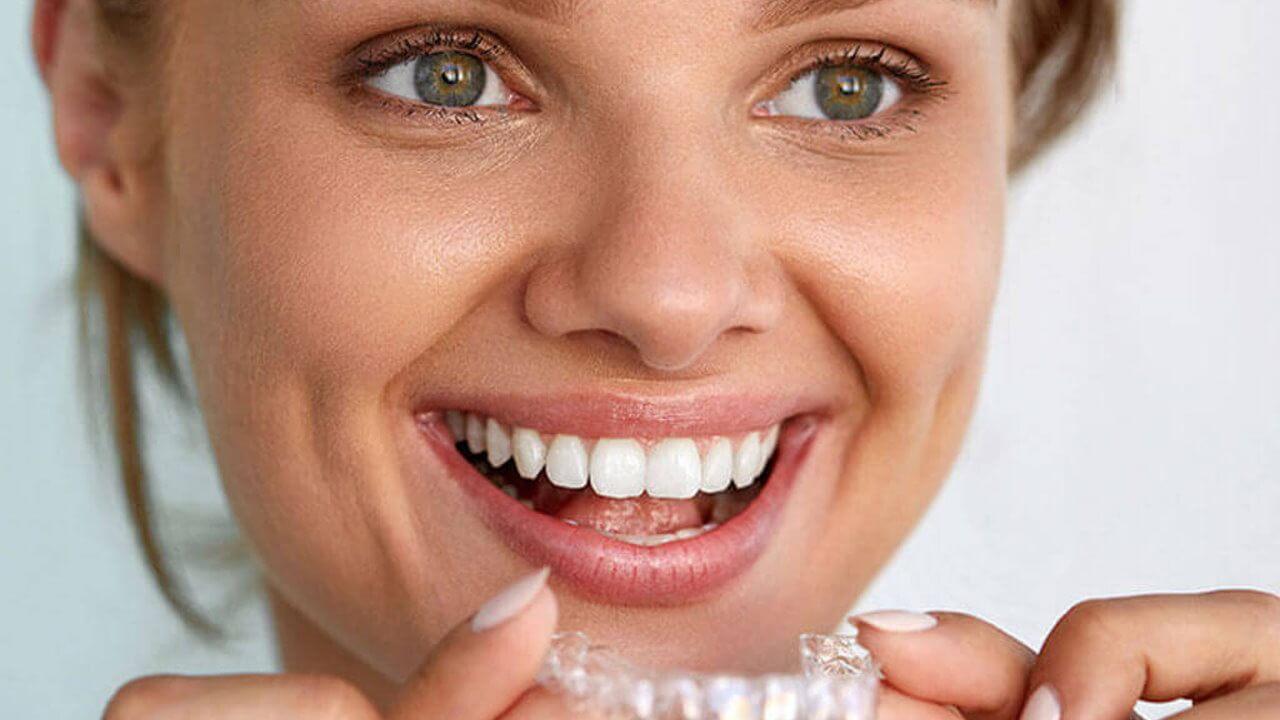 understanding invisalign - Chic Dental